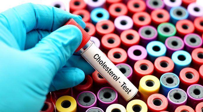 Colesterol y salud cardiovascular suplementación Colesterol i salut cardiovascular