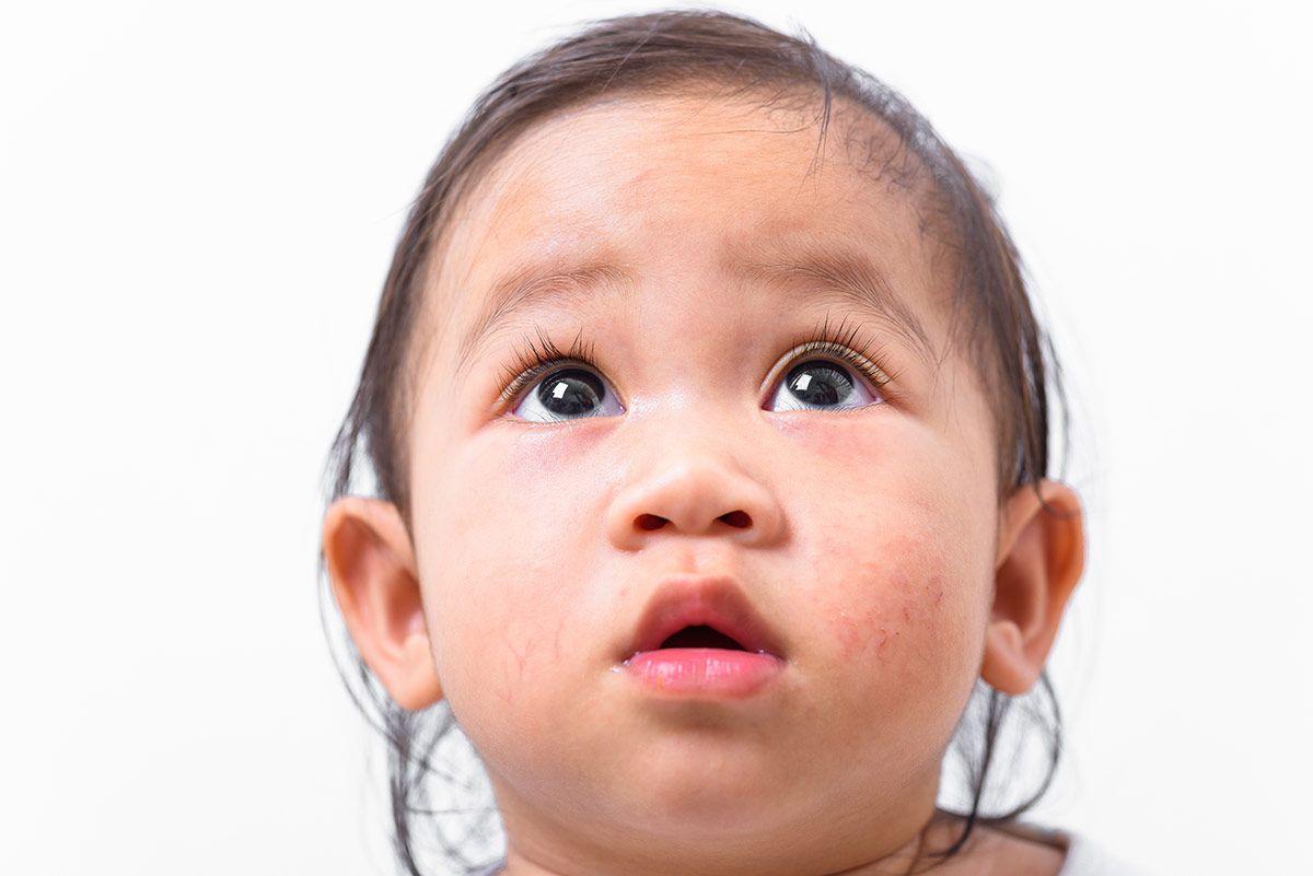 Alimentación para niños y adultos con dermatitis atópica