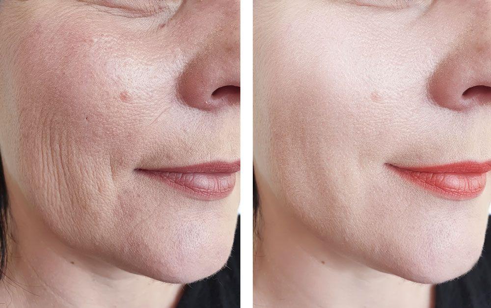 Cómo aumentar el colágeno tipo 1 en tu piel